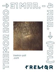 TREMOR - 2020